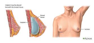 breast augmentation by implants